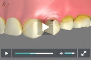 Failure to Treat Dental Abrasion