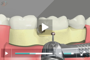 Crown Lengthening(With Bur Tool) - Scenario I