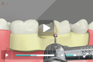Crown Lengthening(With Bur Tool) - Scenario II