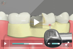 Crown Lengthening(With Laser Tool) - Scenario II