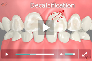 Decalcification On Tooth Decay