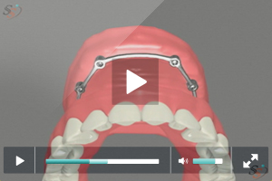 Fixed Implant Denture Option - Maxillary