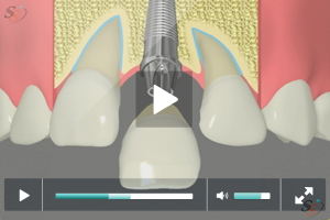 Implant Restoration - Option 1