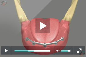 Implant Supported Denture - Scenario 3