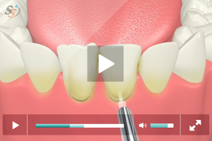 Laser Mandibular Veneers Removing