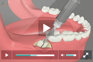 Third Molar Extraction - Mesio Angular